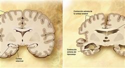 posgrado métodos diagnósticos de las enfermedades neurodegenerativas