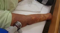 posgrado resistencia antimicrobiana tratamiento infeccion nosocomial