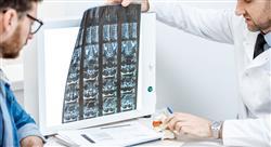 estudiar avances en el manejo de los tumores y traumatismos en la columna vertebral