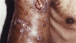 posgrado diagnostico tratamiento enfermedades micoticas