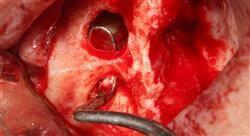 maestria implantología y cirugía oral