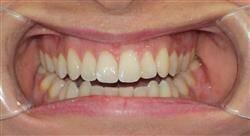 maestria online odontología estética adhesiva