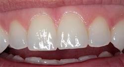 diplomado encerado anatómico para odontólogos