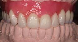 formacion encerado anatómico para odontólogos