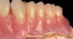 posgrado encerado anatómico para odontólogos