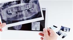 magister periodoncia implantología y cirugía bucal