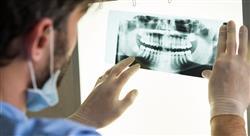 master periodoncia implantología y cirugía bucal