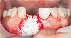 magister endodoncia periodoncia y cirugía bucal