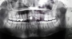 master endodoncia y microcirugía apical