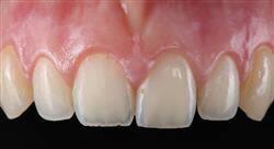 experto universitario cirugía mucogingival en periodoncia