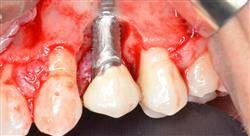 estudiar cirugía periodontal básica y láser en periodoncia
