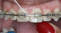especializacion online ortodoncia clínica