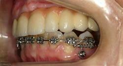 especializacion ortodoncia clínica