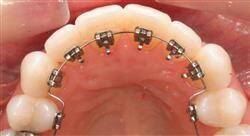 estudiar ortodoncia clínica