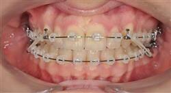 experto universitario ortodoncia clínica
