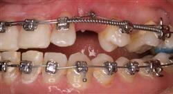 especializacion online ortodoncia avanzada