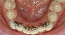 experto universitario ortodoncia lingual