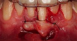 master periodoncia y cirugía mucogingival