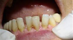 curso periodoncia ortodoncia y oclusión
