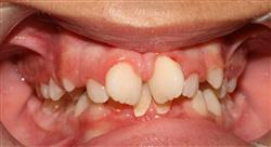 formacion periodoncia ortodoncia y oclusión