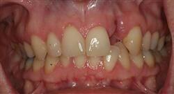 curso periodoncia y láser