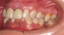curso mantenimiento del paciente periodontal e implantado