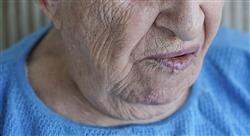 formacion experto medicina oral patologias elementales glandulas salivales atm neuropatias Tech Universidad