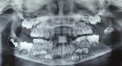 curso lesiones oseas quistes maxilares Tech Universidad