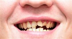 curso online lesiones oseas quistes maxilares Tech Universidad