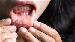 formacion cancer oral tumores malignos Tech Universidad