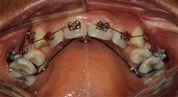 curso ortodoncia y cirugía ortognática