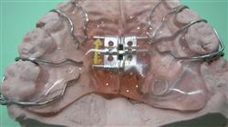 posgrado ortopedia dentofacial temprana