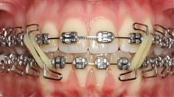 curso acreditado tratamientos avanzados en ortodoncia convencional