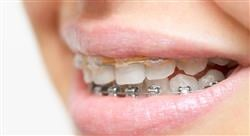 diplomado tratamientos avanzados en ortodoncia convencional