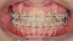 formacion ortodoncia convencional