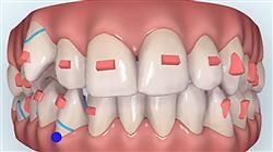 estudiar ortodoncia termoplástica