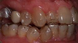 ortodoncia termoplastica