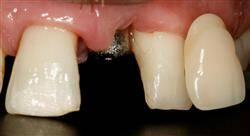 especializacion odontología restauradora y rehabilitación directa del sector anterior