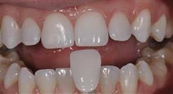 especializacion online odontología restauradora y rehabilitación directa del sector anterior