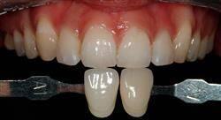 especializacion online diagnóstico estético en odontología