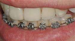 experto universitario diagnóstico estético en odontología