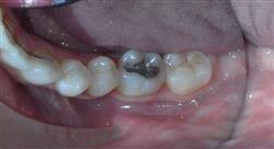 estudiar retratamiento del diente endodonciado