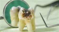 experto universitario retratamiento del diente endodonciado