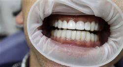 formacion adhesión y composites para odontólogos