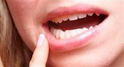 posgrado adhesión y composites para odontólogos