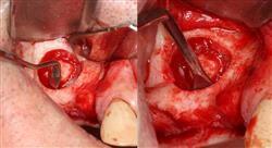 posgrado elevación del seno maxilar