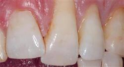 formacion patología pulpo periodontal y las relaciones endoperiodontales