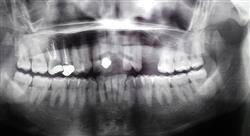 formacion problemas endodóncicos accidentes y complicaciones en endodoncia