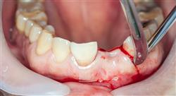 posgrado traumatología dentaria en endodoncia