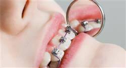 curso odontología en pacientes pediátricos con necesidades especiales